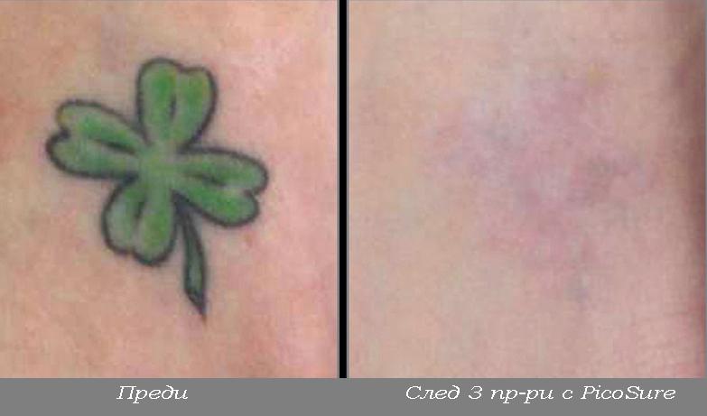 татуировки лазер